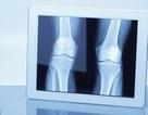 Phát hiện 1 hoóc-môn do xương sản xuất giúp giảm cân