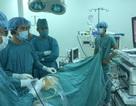 Cần Thơ: Lần đầu tiên phẫu thuật cắt dạ dày qua nội soi