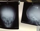 Ngã khi ngủ, bé trai bị đinh vít đâm vào hộp sọ