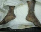 Những hình ảnh gây sốc về bệnh liên cầu lợn