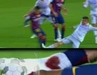 Cổ chân Neymar đẫm máu vì đòn triệt hạ của đối thủ