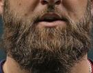 Bị bỏ tù 6 năm vì cố tình nuôi râu