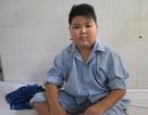 Cậu bé 13 tuổi suýt mù vì bệnh cườm đá đục và viêm màng bồ đào hiếm gặp