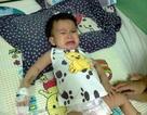 Cuộc sống lay lắt của bé 1 tuổi bị ung thư máu
