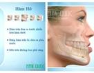 Phẫu thuật chỉnh hàm hô móm (vẩu) không cần niềng răng