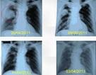 Đốt u phổi bằng sóng cao tần, hi vọng mới của bệnh nhân ung thư