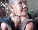 """Thương cụ bà 80 tuổi khốn khổ mang khối u """"khổng lồ"""""""