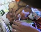 Cứu thai nhi 7 tháng bị đẻ rơi trong nhà vệ sinh