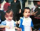 50 năm thảm họa da cam Việt Nam