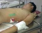 Một kỹ sư bị đâm chém dã man tại quận Hà Đông
