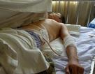 Khởi tố vụ án một kỹ sư bị đâm chém dã man tại Hà Đông
