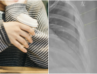 Uống 10 cốc cà phê mỗi ngày trong 7 năm, cô gái 30 tuổi có xương như cụ già