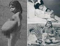 Bé gái 5 tuổi mang thai 7 tháng, trở thành bà mẹ trẻ nhất thế giới