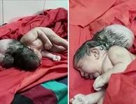 """Trẻ sơ sinh 3 đầu như """"người ngoài hành tinh"""" khiến các bác sĩ choáng váng"""