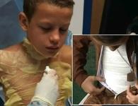 """Cậu bé 12 tuổi bị bỏng nặng khi chơi trò """"thử thách lửa"""""""