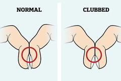 Cách kiểm tra ngón tay đơn giản để biết liệu bạn có bị ung thư phổi không