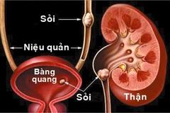 Đả Thạch Vương - Hỗ trợ hiệu quả cho người mắc sỏi tiết niệu, sỏi mật