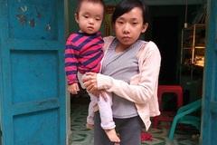 """Cô gái lưng gù trót một lần làm mẹ ôm """"trái tim tật nguyền"""" vì người yêu phụ tình"""
