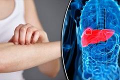 Những triệu chứng cảnh báo ung thư gan giai đoạn cuối