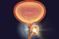 """Phương pháp """"2 trong 1"""": Vừa tiêu diệt ung thư vừa phục hồi thương tổn"""
