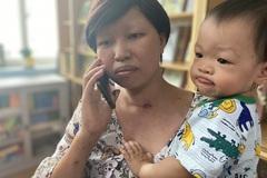 Một năm bên con của người mẹ ung thư giai đoạn cuối sau ca mổ ngồi lấy thai