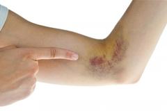 Nhận diện dấu hiệu của ung thư từ những vấn đề sức khỏe thường gặp