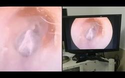 Lấy nhện trong tai nữ bệnh nhân người Trung Quốc