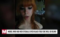 Người mẫu 25 tuổi mù mắt vì xăm lòng đen