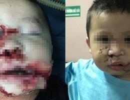 Hà Nội: Bé 2 tuổi bị chó nhà cắn nát mặt