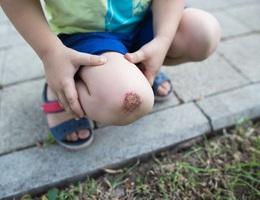 Khoa học cùng với bé: Vết thương lành lại như thế nào?