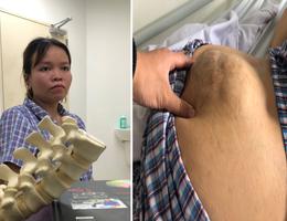 Xót thương cô gái dân tộc Thái suốt 10 năm sống chung với khối u khổng lồ