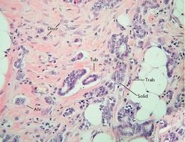 Siêu âm đưa gen trị liệu có thể giúp chống ung thư