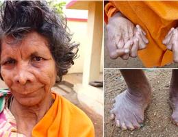 Gặp người phụ nữ có 31 ngón tay chân, được lưu danh vào kỷ lục Guinness