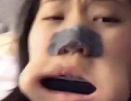 """Quay clip """"câu"""" người xem, cô bé kẹt kèn harmonica trong miệng"""
