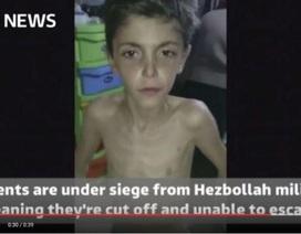 400.000 người Syria có nguy cơ chết đói tại các vùng vây hãm