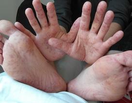 Một số điều cần biết về bệnh tay chân miệng
