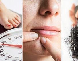 8 dấu hiệu buồng trứng đa nang điển hình, phụ nữ nhất định không được bỏ qua