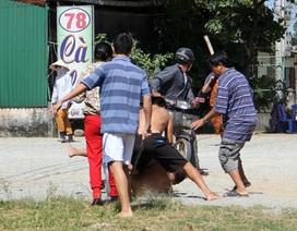 Hỗn chiến tại động mại dâm, một tài xế bị đánh gãy chân