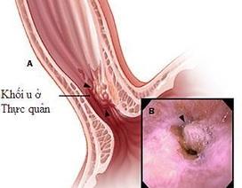 Nguy cơ ung thư từ trào ngược kéo dài