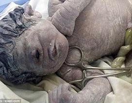 Em bé chỉ có một mắt chào đời ở Ai Cập