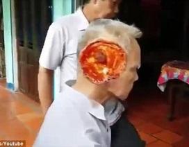 Xuất hiện video mới về người đàn ông bị vi rút lạ ăn nát mặt