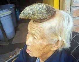 """Bà cụ """"ngưu ma vương"""" khiến các bác sỹ Trung Quốc đau đầu"""