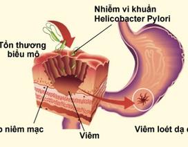 6 điều quan trọng về viêm loét dạ dày ai cũng cần biết