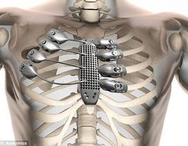 Ca mổ ghép xương ức và xương sườn 3D đầu tiên trên thế giới