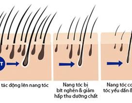 """BS Trần Ngọc Ánh """"giải mã"""" chứng rụng tóc"""