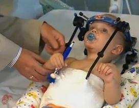 Phép màu y học: Nối đầu thành công cho bé 1 tuổi sau tai nạn xe hơi kinh hoàng