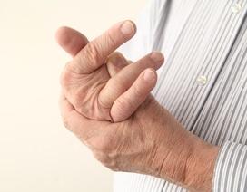 Sưng đau ngón tay, đi khám phát hiện ung thư phổi