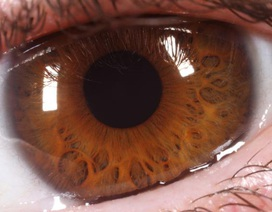 """Bệnh nhân thoái hoá hoàng điểm đầu tiên nhìn được nhờ """"mắt nhân tạo"""""""