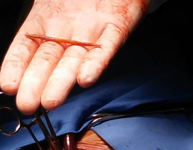 Mổ tim cứu bệnh nhân... nuốt nhầm tăm từ năm trước