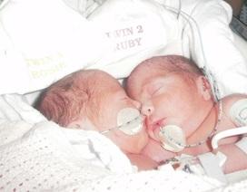 Phép màu đến với hai cô bé sinh đôi dính liền bụng